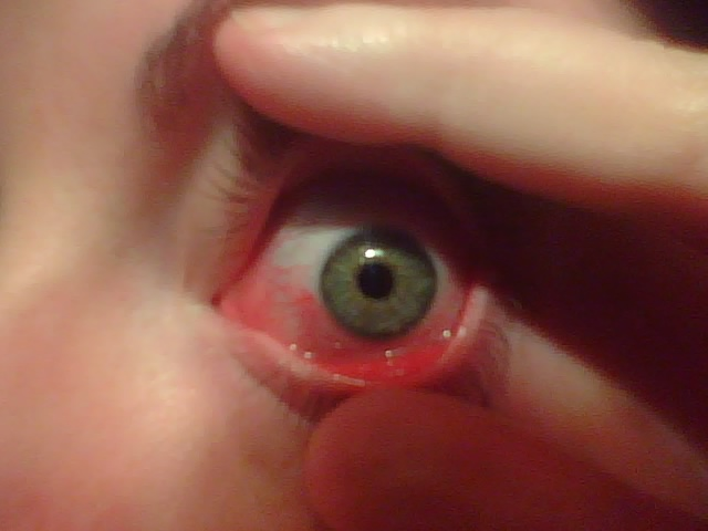 eye drops, conjunctivitis