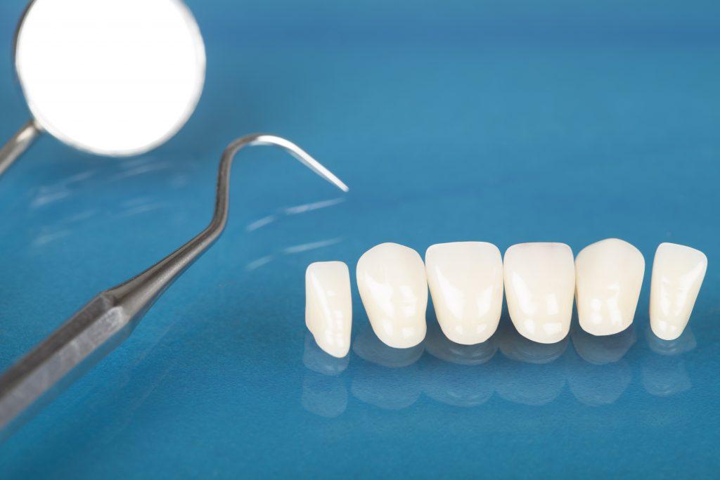 dental treatment, emergency dental treatment, dental emergency, dentist, dadbloguk, dadbloguk.com, dad blog uk, uk dad blog, school run dad, sahd